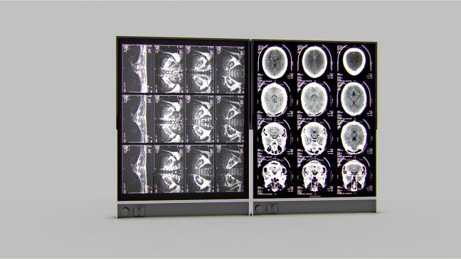 مجموعه مدل های سه بعدی پزشکی - صفحه نمایش تصاویر X-Ray