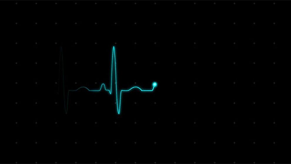 مجموعه ویدیوی موشن گرافیک مانیتور نمایش ضربان قلب Ekg مغزابزار